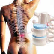 Tratamiento de las Hernias discales con acupuntura