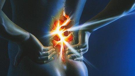 Tratamiento de la ciática y el lumbago con acupunpuntura