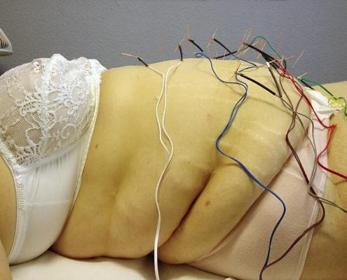 Electroacupuntura para la obesidad